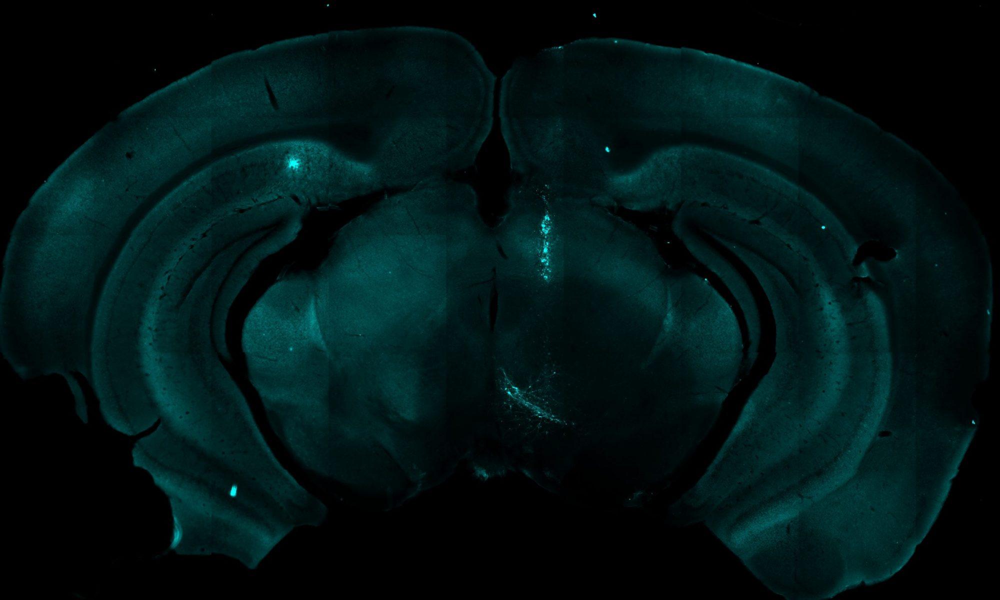 Brain & Mind Symposium 2021