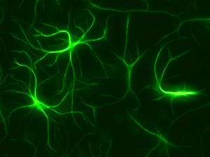 astrocytes-c-Sonja-Paetau