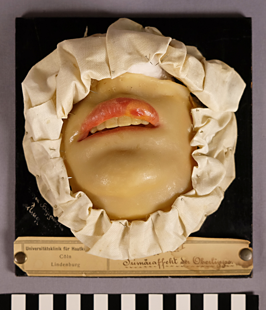 A wax model attached to a black-painted wooden board, around which a white, folded fabric has been attached with needles. The wax model depicts the lower part of a patient's face, particularly the mouth, with the top lip swollen.