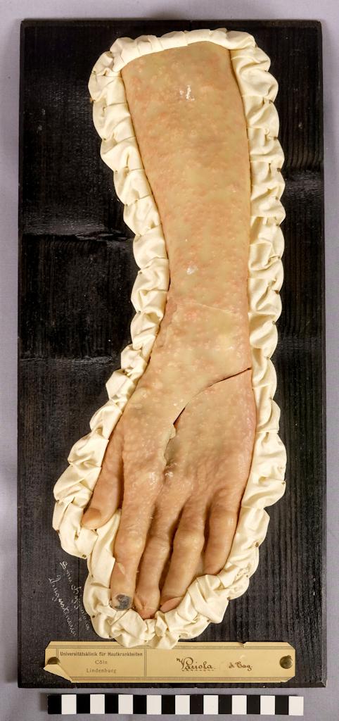 Mustaan taustalevyyn kiinnitetty kättä ja käsivartta esittävä vahakuva. Iholla on tiheästi rokkorakkuloita, ja etusormen kynsi on tummunut. Vahakuvaa ympäröi poimutettu valkoinen kangasreunus.